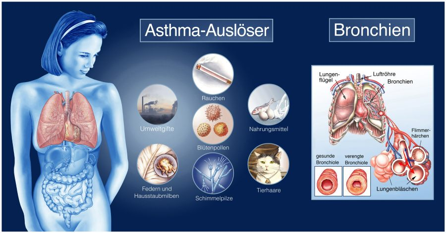 Aerosol-Inhalations-Therapie kann bei Asthma helfen