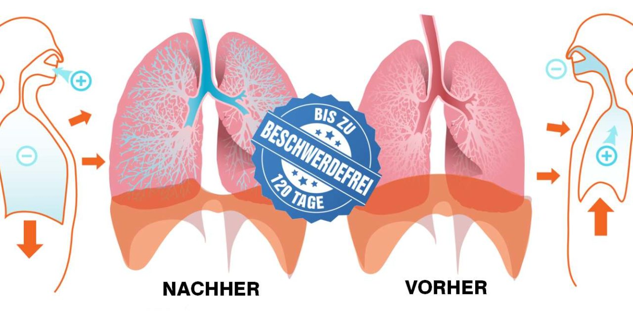 Corona Und Asthma